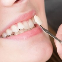 Guide to a Dental Veneer Treatment