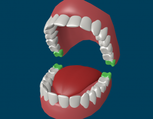 highlighted Wisdom Teeth Removal