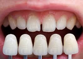 Guide to a Dental Veneer Treatment