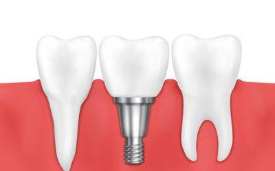 Dental Implants Benefits