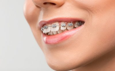 What is the Best Age for Braces?