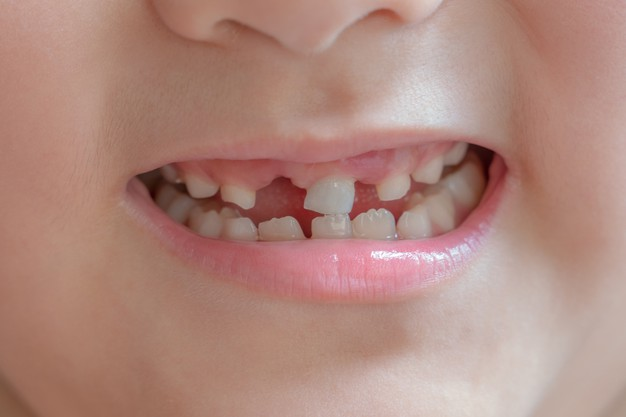 7 Consequences For Not Replacing Your Missing Tooth