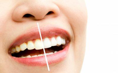 The Secret of dazzling Teeth: Professional Teeth Whitening